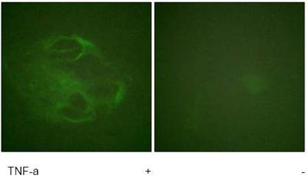Immunocytochemistry/ Immunofluorescence - HGS antibody (ab61194)