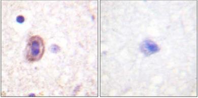 Immunohistochemistry (Formalin/PFA-fixed paraffin-embedded sections) - MKK4 antibody (ab61212)