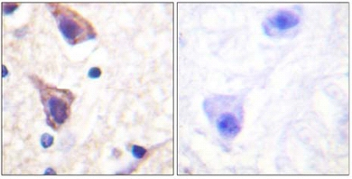 Immunohistochemistry (Formalin/PFA-fixed paraffin-embedded sections) - TGF beta Receptor II antibody (ab61213)