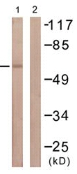 Western blot - TGF beta Receptor II antibody (ab61213)