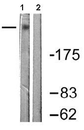 Western blot - Fibronectin antibody (ab61214)