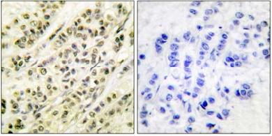 Immunohistochemistry (Formalin/PFA-fixed paraffin-embedded sections) - Skp1 antibody (ab61222)