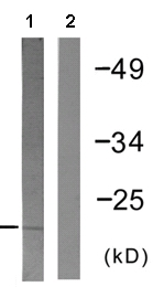 Western blot - Skp1 antibody (ab61222)