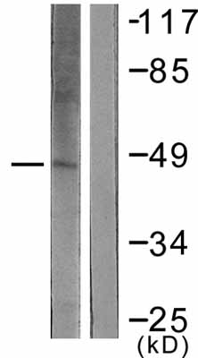 Western blot - KAT1 / HAT1 antibody (ab61225)
