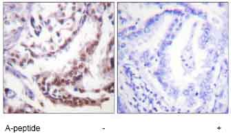 Immunohistochemistry (Formalin/PFA-fixed paraffin-embedded sections) - Histone H3 (acetyl K9) antibody (ab61231)