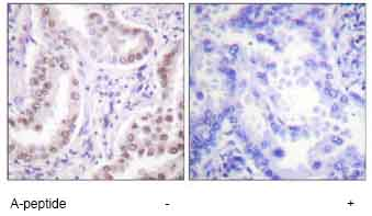 Immunohistochemistry (Formalin/PFA-fixed paraffin-embedded sections) - Histone H3 (acetyl K18) antibody (ab61233)