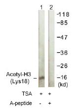 Western blot - Histone H3 (acetyl K18) antibody (ab61233)