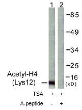 Western blot - Histone H4 (acetyl K12) antibody (ab61238)