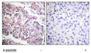 Immunohistochemistry (Formalin/PFA-fixed paraffin-embedded sections) - Histone H4 (acetyl K12) antibody (ab61238)