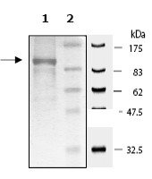 SDS-PAGE - NFkB Inducing Kinase NIK protein (Tagged) (ab61262)