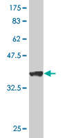 Western blot - Anti-VDAC1/Porin antibody (ab61273)