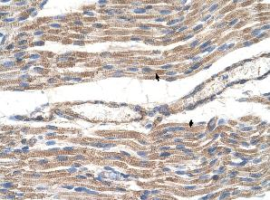 Immunohistochemistry (Formalin/PFA-fixed paraffin-embedded sections) - Glucose Transporter GLUT6 antibody (ab61281)