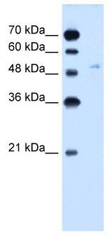 Western blot - Glucose Transporter GLUT6 antibody (ab61281)