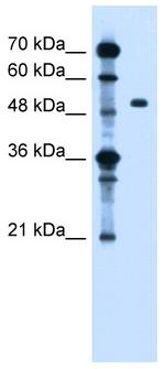 Western blot - ZFYVE27 antibody (ab61285)