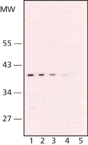 Western blot - TATA binding protein TBP antibody [58C9] (ab61411)