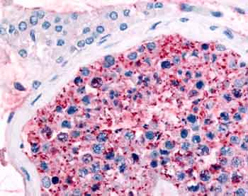 Immunohistochemistry (Formalin/PFA-fixed paraffin-embedded sections) - Frizzled 9 antibody (ab61431)