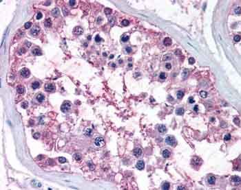 Immunohistochemistry (Formalin/PFA-fixed paraffin-embedded sections) - NR0B1 / Dax1 antibody (ab61434)
