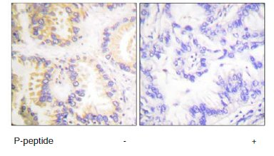 Immunohistochemistry (Formalin/PFA-fixed paraffin-embedded sections) - Anti-Caspase-8 (phospho S347) antibody (ab61755)