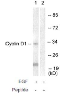 Western blot - Cyclin D1 antibody (ab61758)