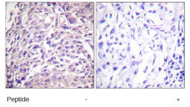 Immunohistochemistry (Formalin/PFA-fixed paraffin-embedded sections) - FOXO1A antibody (ab61760)