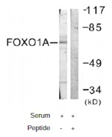 Western blot - FOXO1A antibody (ab61760)