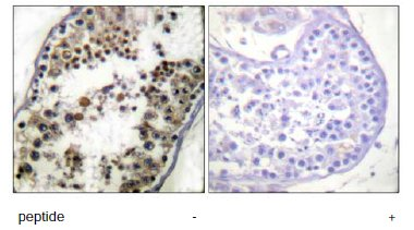 Immunohistochemistry (Formalin/PFA-fixed paraffin-embedded sections) - c-Jun antibody (ab61764)