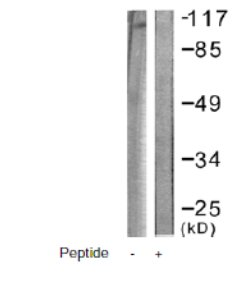 Western blot - Eph receptor B1 antibody (ab61765)