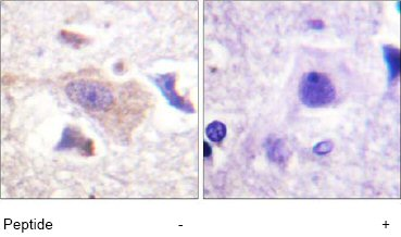 Immunohistochemistry (Formalin/PFA-fixed paraffin-embedded sections) - GRB 10 antibody (ab61771)
