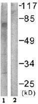 Western blot - GRB 10 antibody (ab61771)