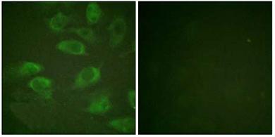 Immunocytochemistry/ Immunofluorescence - IL2 Receptor alpha (phospho S268) antibody (ab61798)
