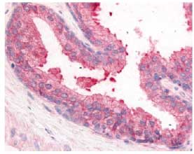 Immunohistochemistry (Formalin/PFA-fixed paraffin-embedded sections) - PDE8A antibody (ab61815)
