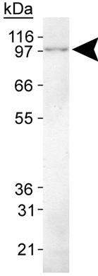 Western blot - p90 Autoantigen  antibody [2G10] (ab61863)