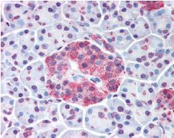 Immunohistochemistry (Formalin/PFA-fixed paraffin-embedded sections) - Wnt10a antibody (ab62051)