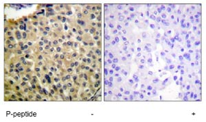 Immunohistochemistry (Formalin/PFA-fixed paraffin-embedded sections) - c-Kit (phospho Y703) antibody (ab62154)