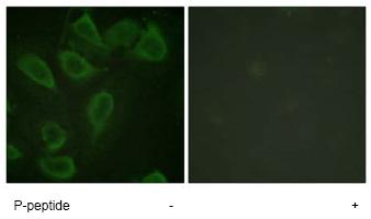 Immunocytochemistry/ Immunofluorescence - CD31 (phospho Y713) antibody (ab62169)