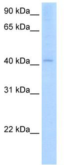 Western blot - AADAC antibody (ab62176)