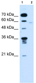 Western blot - FMO3 antibody (ab62178)