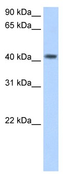 Western blot - PSG5 antibody (ab62180)