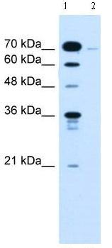 Western blot - KLHL31 antibody (ab62181)