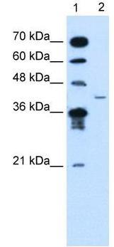 Western blot - MFAP3L antibody (ab62188)