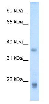 Western blot - GH2 antibody (ab62193)