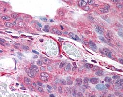 Immunohistochemistry (Formalin/PFA-fixed paraffin-embedded sections) - PLA2G3 antibody (ab62197)