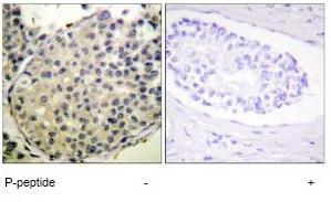 Immunohistochemistry (Formalin/PFA-fixed paraffin-embedded sections) - eIF4G1 (phospho S1108) antibody (ab62200)