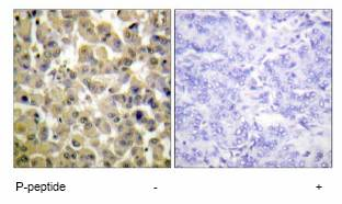 Immunohistochemistry (Formalin/PFA-fixed paraffin-embedded sections) - MSK1 (phospho S360) antibody (ab62201)