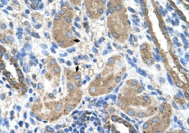 Immunohistochemistry (Formalin/PFA-fixed paraffin-embedded sections) - Cytochrome P450 2D6 antibody (ab62204)