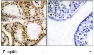 Immunohistochemistry (Formalin/PFA-fixed paraffin-embedded sections) - Rb (phospho T821) antibody (ab62209)