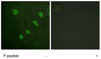 Immunocytochemistry/ Immunofluorescence - ATF2 (phospho S480) antibody (ab62210)