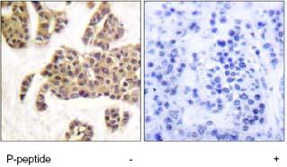 Immunohistochemistry (Formalin/PFA-fixed paraffin-embedded sections) - Bad (phospho S91) antibody (ab62211)