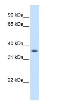 Western blot - AKR1B10 antibody (ab62218)