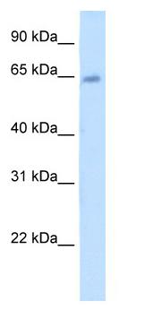 Western blot - Steroid sulfatase antibody (ab62219)